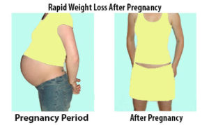 Rapid Weight Loss After Pregnancy